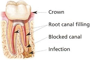 Root Infection