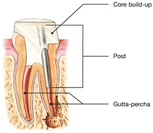 Tooth Post